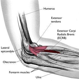 pickleball elbow